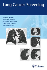 Cover Lung Cancer Screening