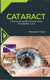 Cover Cataract (A Structural And Biochemical Study Of Crystalline Lens)
