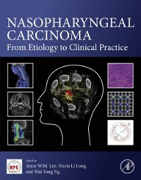 Cover Nasopharyngeal Carcinoma