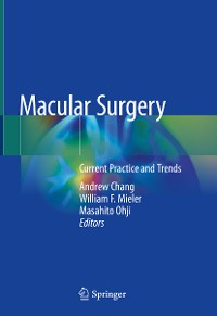 Cover Macular Surgery