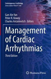 Cover Management of Cardiac Arrhythmias