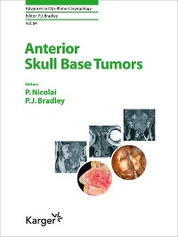 Cover Anterior Skull Base Tumors