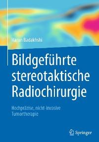 Cover Bildgeführte stereotaktische Radiochirurgie