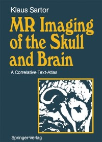 Cover MR Imaging of the Skull and Brain