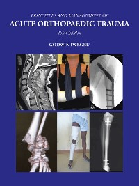 Cover Principles and Management of Acute Orthopaedic Trauma