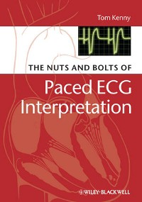 Cover The Nuts and bolts of Paced ECG Interpretation
