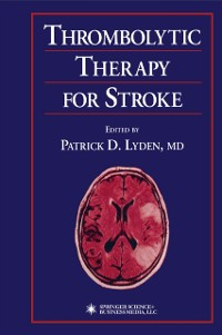 Cover Thrombolytic Therapy for Stroke