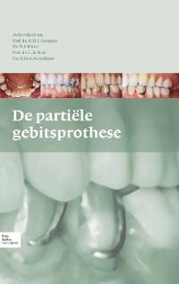 Cover De partiële gebitsprothese