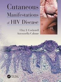 Cover Cutaneous Manifestations of HIV Disease