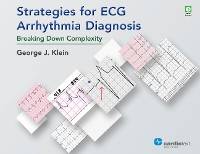 Cover Strategies for ECG Arrhythmia Diagnosis