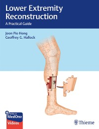 Cover Lower Extremity Reconstruction