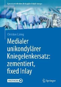 Cover Medialer unikondylärer Kniegelenkersatz: zementiert, fixed Inlay