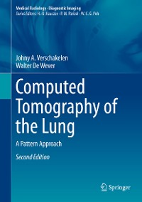 Cover Computed Tomography of the Lung