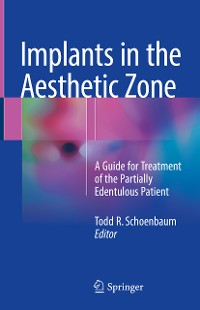 Cover Implants in the Aesthetic Zone