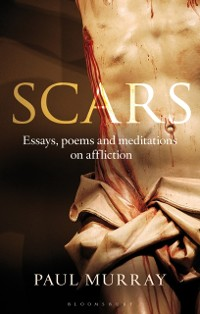 Cover Scars
