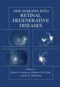 Cover New Insights Into Retinal Degenerative Diseases