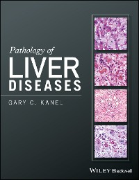 Cover Pathology of Liver Diseases