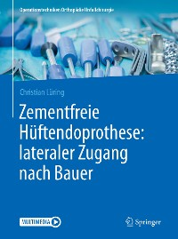 Cover Zementfreie Hüftendoprothese: lateraler Zugang nach Bauer