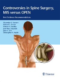 Cover Controversies in Spine Surgery, MIS versus OPEN