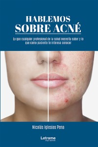Cover Hablemos sobre acné