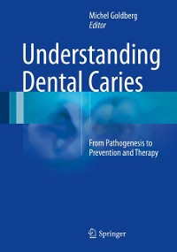 Cover Understanding Dental Caries