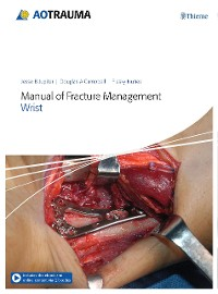 Cover Manual of Fracture Management – Wrist