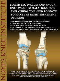 Cover Bowed Leg (Varus) and Knock-Knee (Valgus) Malalignment