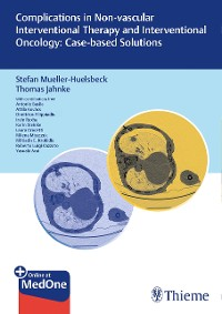 Cover Complications in Non-vascular Interventional Therapy and Interventional Oncology: Case-based Solutions