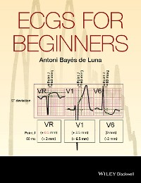 Cover ECGs for Beginners