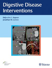 Cover Digestive Disease Interventions