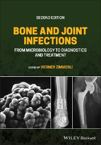 Cover Bone and Joint Infections