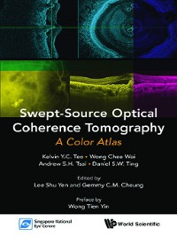 Cover Swept-source Optical Coherence Tomography