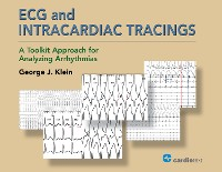 Cover ECG and Intracardiac Tracings