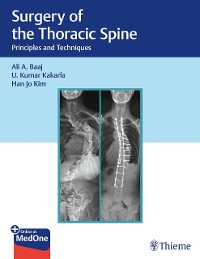 Cover Surgery of the Thoracic Spine