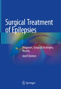 Cover Surgical Treatment of Epilepsies