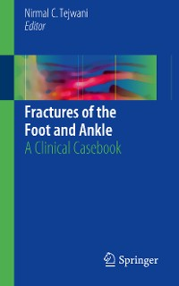 Cover Fractures of the Foot and Ankle