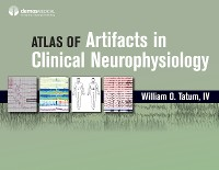 Cover Atlas of Artifacts in Clinical Neurophysiology