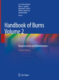 Cover Handbook of Burns Volume 2