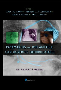 Cover Pacemakers and Implantable Cardioverter Defibrillators: An Expert's Manual