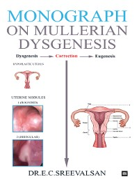 Cover Monograph on Mullerian Dysgenesis