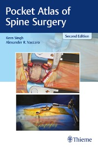 Cover Pocket Atlas of Spine Surgery
