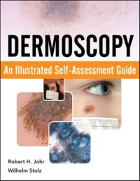 Cover Dermoscopy: An Illustrated Self-Assessment Guide