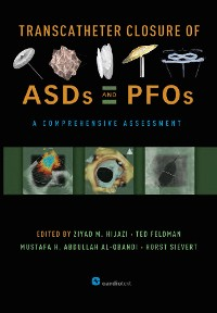 Cover Transcatheter Closure of ASDs and PFOs : A Comprehensive Assessment