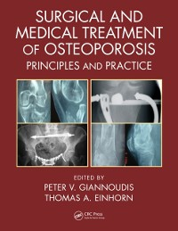 Cover Surgical and Medical Treatment of Osteoporosis