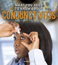 Cover What You Need to Know about Conjunctivitis