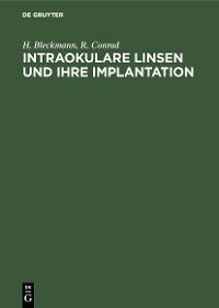 Cover Intraokulare Linsen und ihre Implantation