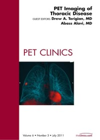 Cover PET Imaging of Thoracic Disease,  An Issue of PET Clinics - E-Book