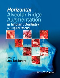 Cover Horizontal Alveolar Ridge Augmentation in Implant Dentistry