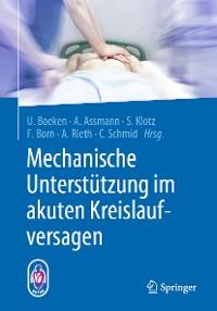 Cover Mechanische Unterstützung im akuten Kreislaufversagen
