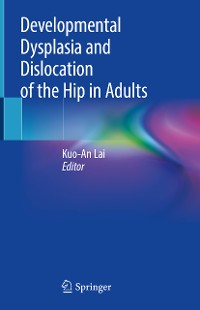 Cover Developmental Dysplasia and Dislocation of the Hip in Adults